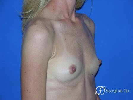 Denver Breast Augmentation 8 - Before Image 2