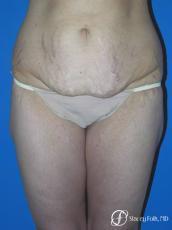 Denver Body Lift Belt lipectomy 5262 - Before Image