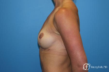 Denver Breast Lift - Mastopexy 8297 -  After Image 2