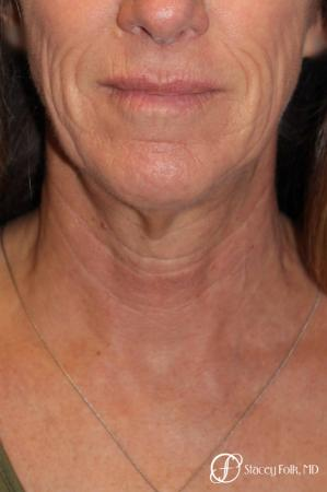 Denver Facial Rejuvenation Face lift, Fat Injections, and Laser Resurfacing 7132 - Before and After Image 3