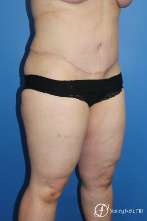 Tummy Tuck (Abdominoplasty) -  After Image 2
