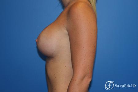Breast Augmentation with Sientra Textured Implants -  After Image 2