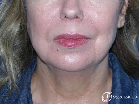 Denver Facial Rejuvenation Facelift, Fat Transfer, and Laser Resurfacing 8513 - Before and After Image 3