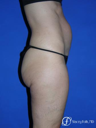 Denver Tummy Tuck Abdominoplasty 5485 - Before and After Image 2