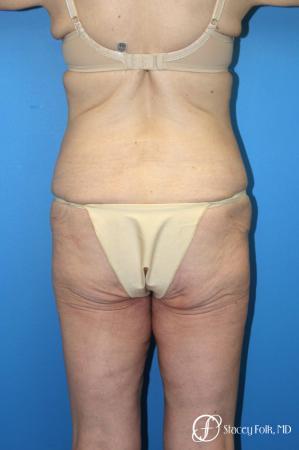 Denver Body Lift Belt lipectomy 5268 - Before Image 2