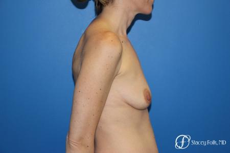 Fat Transfer Breast Lift: Patient 1 - Before Image 2