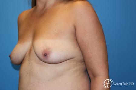 Denver Fat Transfer Breast Lift Mastopexy with Fat Transfer to the Breast 6920 - Before Image 2