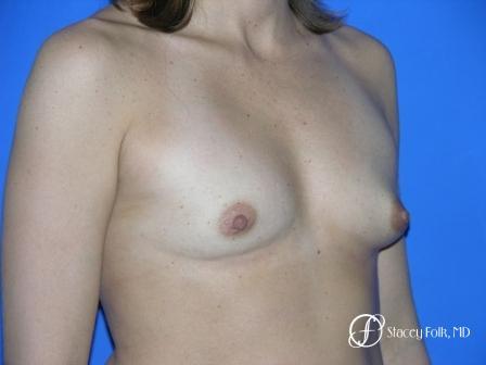 Denver Breast Augmentation 960 - Before Image 2