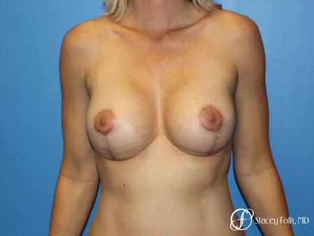 Breast augmentation with breast lift (Mastopexy) -  After Image 1