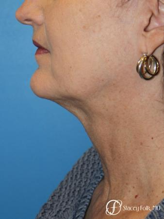 Denver Facial Rejuvenation Facelift, Blepharoplasty, Fat Transfer, Laser Resurfacing 10350 - Before Image