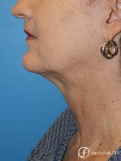 Denver Facial Rejuvenation Facelift, Blepharoplasty, Fat Transfer, Laser Resurfacing 10350 - Before Image