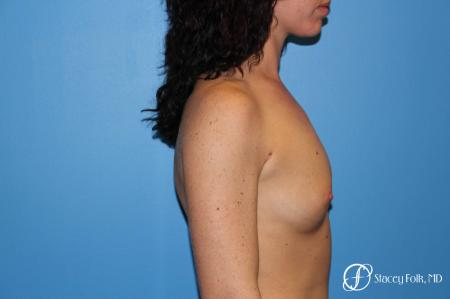 Denver Breast Augmentation using Sientra Breast Implants 7135 - Before and After Image 3