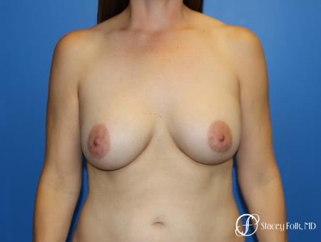 Fat Transfer Breast Lift (Mastopexy) - Before Image