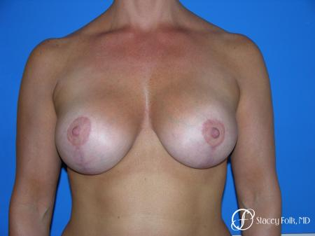 Denver Breast Lift and Augmentation 4556 - After Image