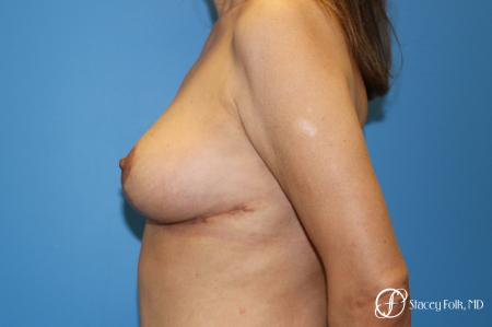 Denver Breast Lift - Mastopexy 7984 -  After Image 3