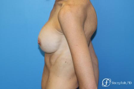 Denver Breast Revision 8504 - Before and After Image 4