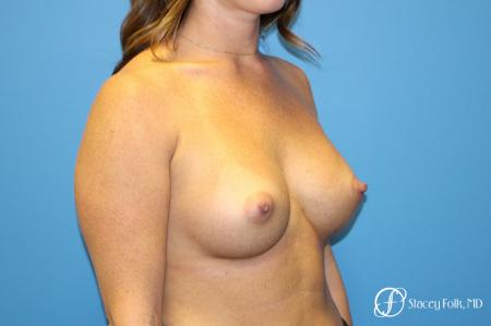 Denver Breast Augmentation using Sientra Silicone Breast Implants 9092 -  After Image 2