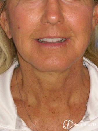 Denver Facial Rejuvenation Face Lift and Laser Resurfacing 7119 -  After Image 3