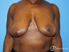 Denver Breast Reduction (Mastopexy) 7081 - Before Image