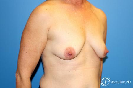Denver Breast Augmentation Mastopexy 8163 - Before and After Image 3