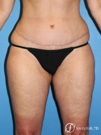 Tummy Tuck - Abdominoplasty - After Image