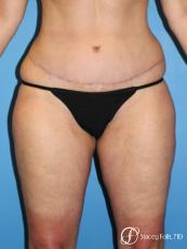 Tummy Tuck - Abdominoplasty - After Image