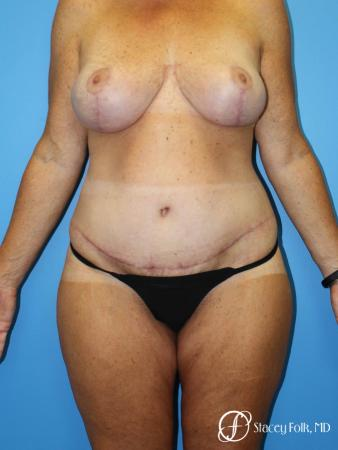 Denver Mommy Makeover Belt lipectomy, liposuction, mastopexy 5938 - After Image