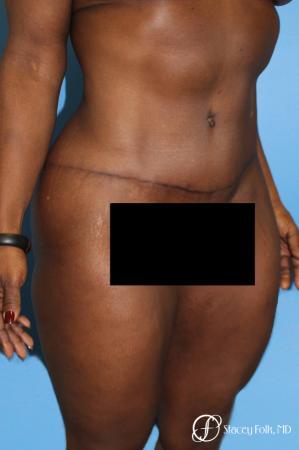 Denver Tummy Tuck - Abdominoplasty 7514 -  After Image 3