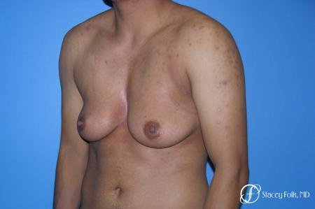 Denver FTM Female to male top surgery 5254 - Before Image 4