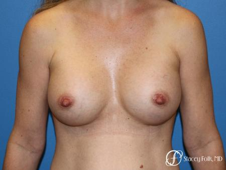 Denver Breast Augmentation using Textured Sientra Breast Implants 8414 -  After Image 1