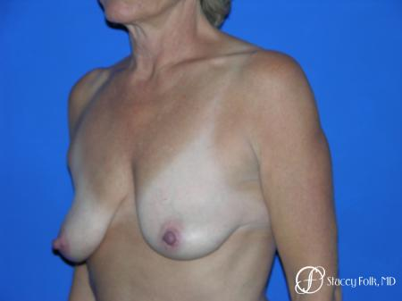 Denver Breast Lift and Augmentation 4557 - Before Image 2