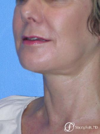 Denver Facial Rejuvenation Face Lift and Fat Injections 7117 -  After Image 2