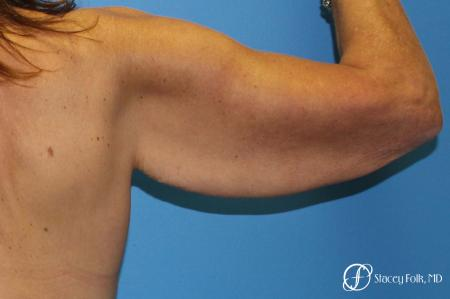 Denver Brachioplasty 8457 - Before and After Image 3