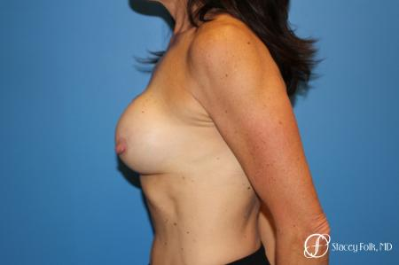 Denver Breast Revision 8272 - Before and After Image 2