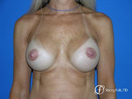 Denver Breast Revision 47 - After Image