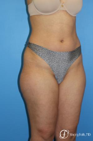 Denver Liposuction 8512 - Before and After Image 2