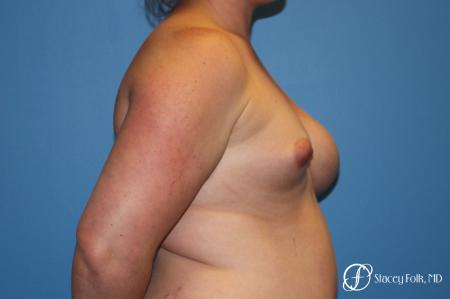 Fat Transfer To Right Breast - Before and After Image 3