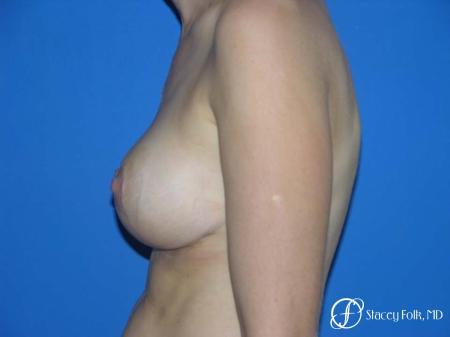 Denver Breast Lift - Mastopexy 7983 -  After Image 3