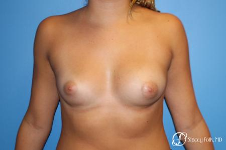 Fat Transfer Breast Augmentation - Before Image