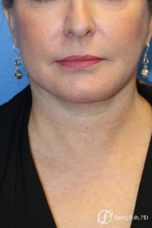 Denver Facial Rejuvenation 9894 -  After Image 2
