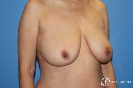Denver Breast Lift - Mastopexy 7984 - Before Image 2