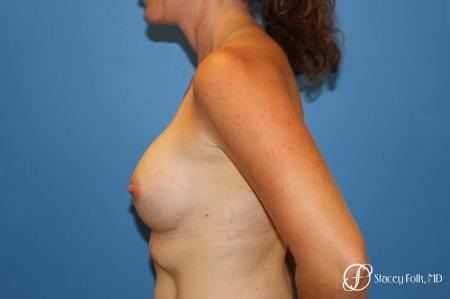 Denver Breast Augmentation 6611 -  After Image 3