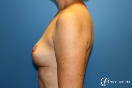 Denver Breast Reduction and Breast Lift - Mastopexy 8231 -  After Image 2