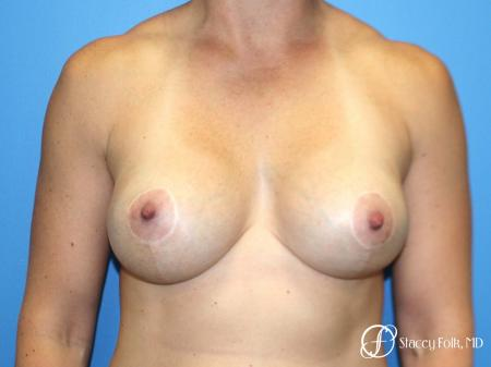 Denver Breast Augmentation with a Breast Lift - Mastopexy 8361 - After Image