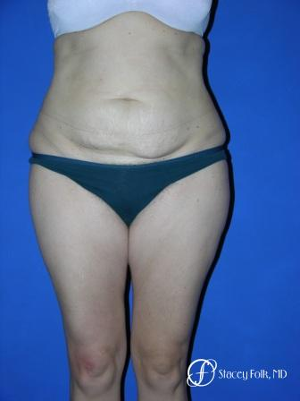 Denver Tummy Tuck 34 - Before Image 1