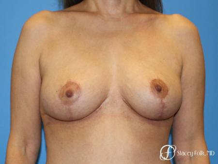 Denver Breast Lift - Mastopexy 7984 -  After Image 1