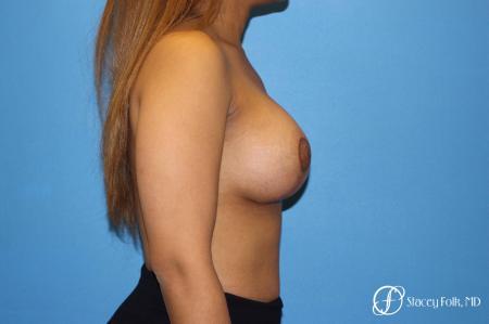 Denver Breast augmentation mastopexy 4815 -  After Image 3