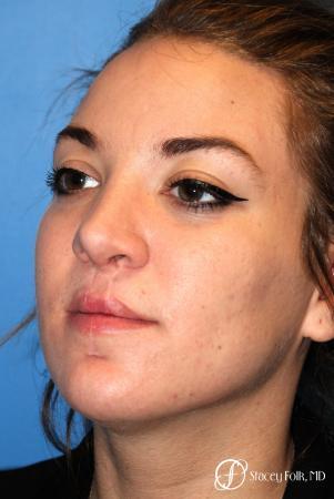 Denver Septorhinoplasty and Cleft Lip Repair 8162 -  After Image 2