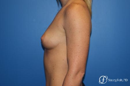 Breast Augmentation with Sientra Textured Implants - Before and After Image 2