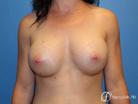 Denver Breast Augmentation using Sientra Breast Implants 7135 -  After Image 1